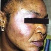 SENEGAL: La dépigmentation ou la beauté dangereuse