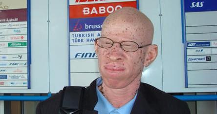 UN SENEGALAIS A GENEVE pour défendre la cause des  albinos