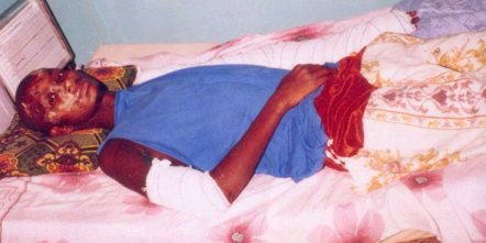 [ PHOTOS ] UN ETUDIANT en 2e année A L'UCAD victime d'un accident attend 15'000 cfa pour affronter la justice
