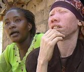 POUR LA MODIQUE SOMME DE 3000 DOLLARS: Un homme a essayé de vendre sa femme Albinos (Tanzanie)