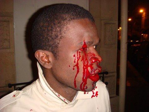 PHOTOS: Affrontements sanglants entre les manifestants du mouvement de Vision Alternative et les militants du Pds.
