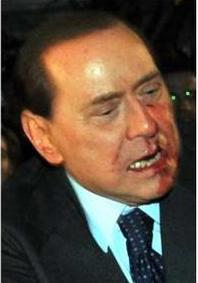 [VIDEO] Silvio Berlusconi hospitalisé après une violente agression