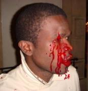 Bagarre à la résidence de l'ambassadeur du Sénégal à Paris : La garde rapprochée de Wade mise en cause