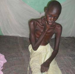 DIOURBEL / SOS POUR UN MALADE DE NEUROMYELOPATHIE PRAVIDO-PUERPERALE  Ndiatte Ndao sollicite votre aide pour survivre