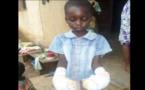Côte d'Ivoire: Pour punir son élève, elle plonge ses mains dans de l'eau bouillante