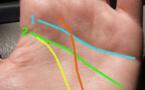 Santé : Voici ce que révèle cette ligne de la main si vous l'avez