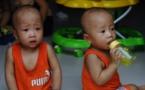 Vietnam : ils sont jumeaux… mais n'ont pas le même père