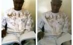 PHOTOS: Le responsable PS des Parcelles, Mamoudou Wane, à la suite de son agressiond du 5 mars dernier