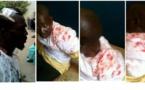 GAMBIE/Une manifestation pacifique d'opposants vire à un bain de sang : 12 blessés graves et 42 manifestants arrêtés