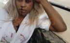 PHOTOS - Apres une fausse video se disant victime d'une agression, Guigui fait circuler des photos truquées pour faire le buzz