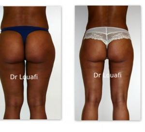 Vidéo:Chirurgie esthétique, un phénomène qui prend de l'ampleur au Sénégal…